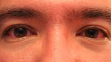 czerwone oczy