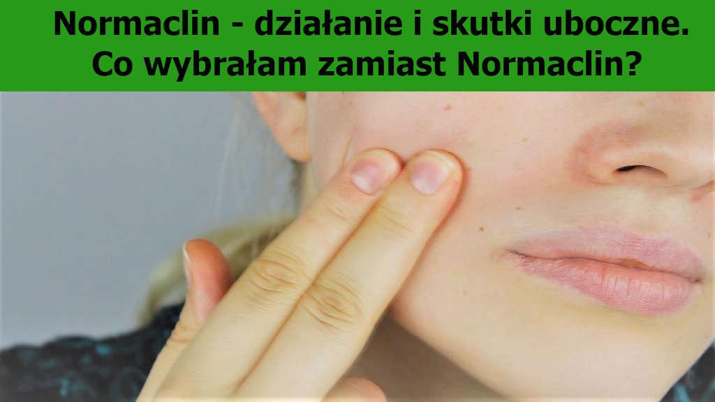 Normaclin – działanie i skutki uboczne. Co wybrałam zamiast Normaclin?